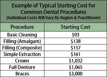 Chart of Typical Start Costs for Common Dental Procedures